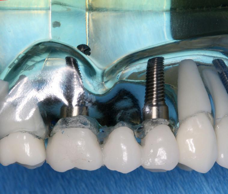 Implant_retained_bridge_model