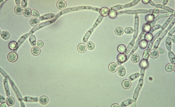 candida-albicans3 candida cleanse