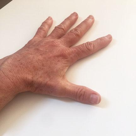fingerlift1