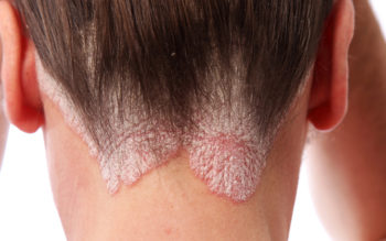 9 Psoriasis Dos and Don'ts You Need to Follow!