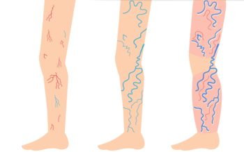 Incredibly Simple Ways to Fight Varicose and Spider Veins