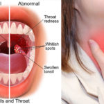 tonsils-sore-throat