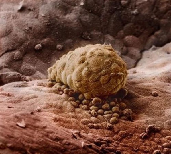 Weeks after the sperm fertilizes the egg, the embryo is attached to the uterus wall. (Lennart Nilsson)