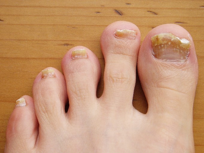 She Removes His Foot Fungus With An Easy 2 Ingredient Recipe Within