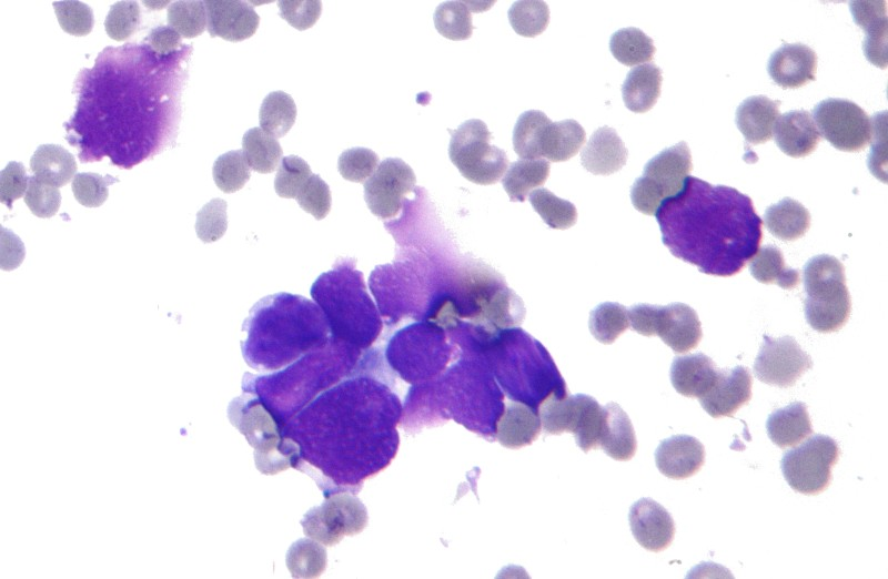 Small_cell_lung_cancer_-_cytology