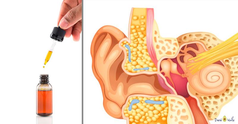 eardrops-wax