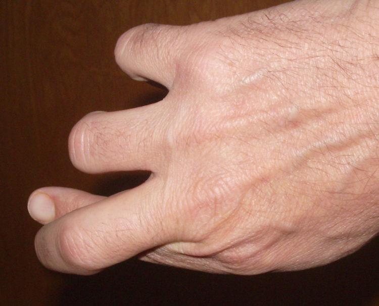 Crossed_fingers_P1442