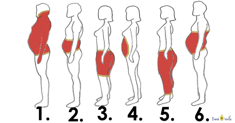 Kết quả hình ảnh cho Lower-body obesity with fat in the lower legs