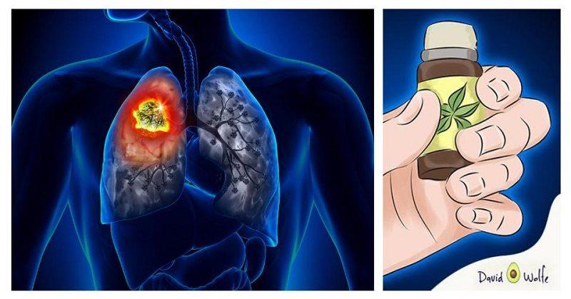essential oils cancer