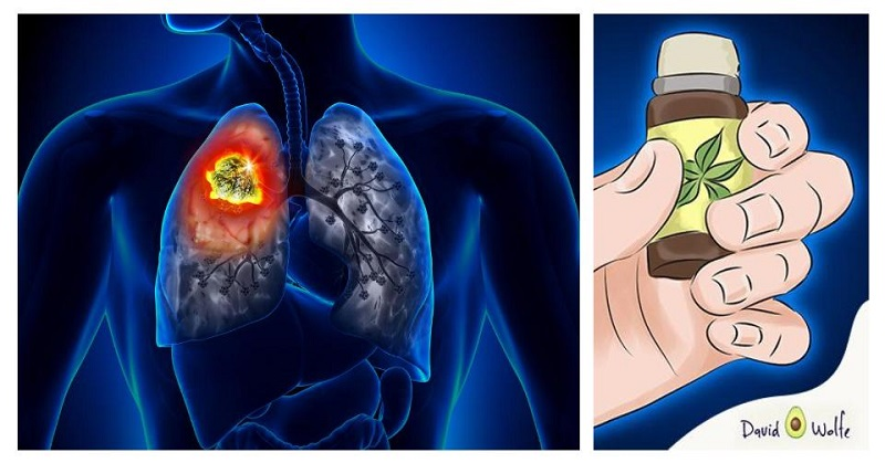 The Truth About Cancer And Essential Oils: What Oncologists Won't Tell You