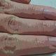 melanoma-finger