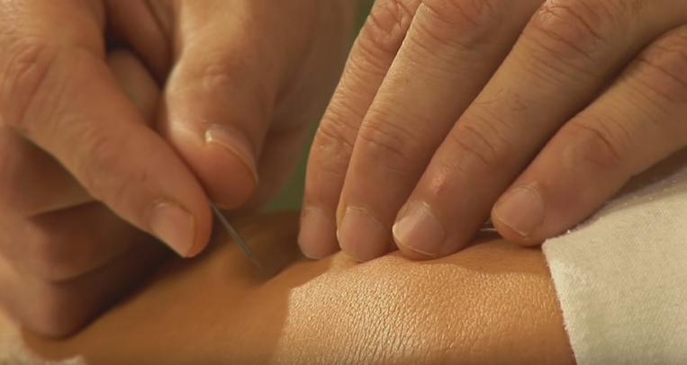 Studies Show Acupuncture Beats Pharmaceuticals for Sciatica Pain