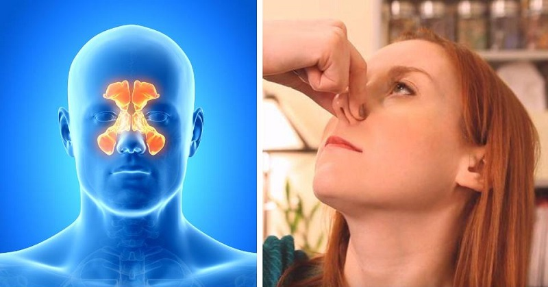 sinus congestion FI