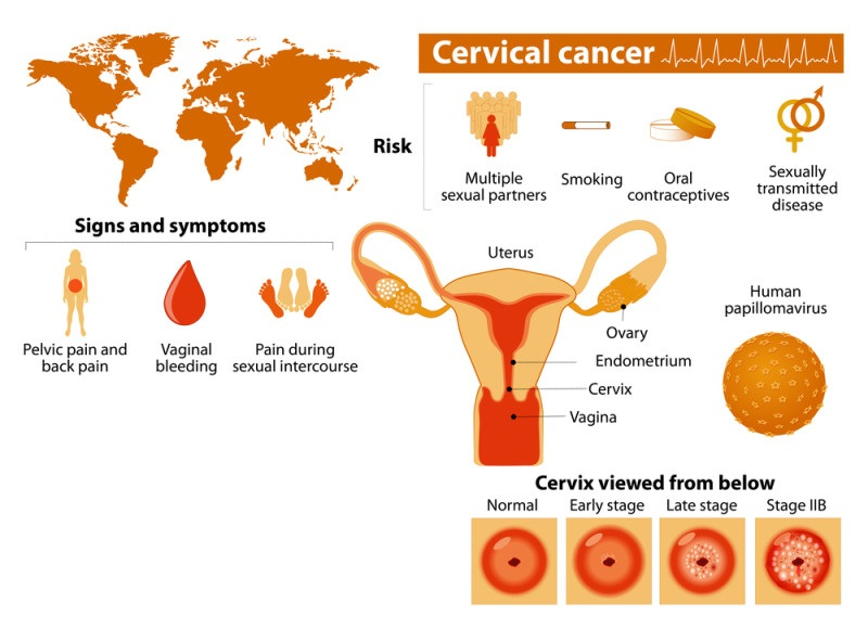 most women miss these 3 early signs of cervical cancer! - david, Skeleton