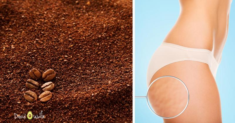 coffee cellulite