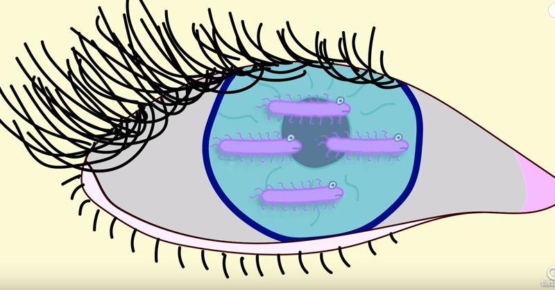 contact bactera FI