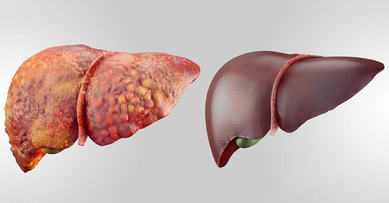liver detox FI