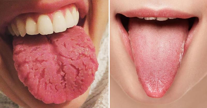 tongue health FI