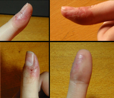 Fingertips_of_a_dermatophagia_sufferer