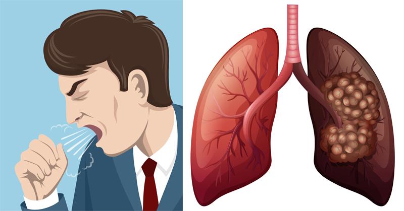 Lung Cancer FI
