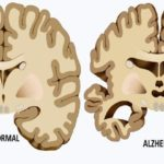 alzheimer causes FI
