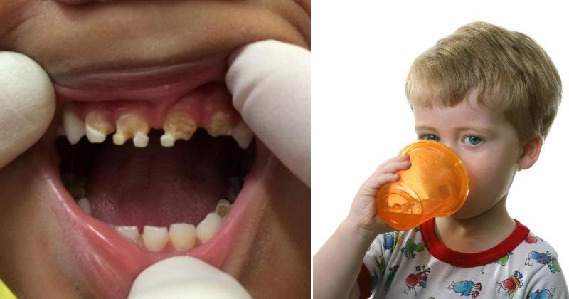 child tooth decay FI