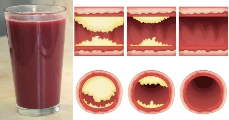 juice unclog arteries FI