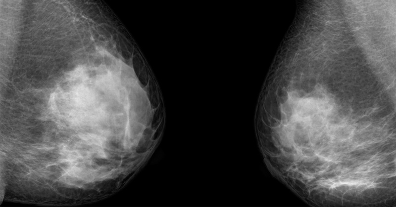 mammogram stop FI