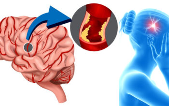 5 Important Life Changes that Can Reduce Your Chance of a Stroke!
