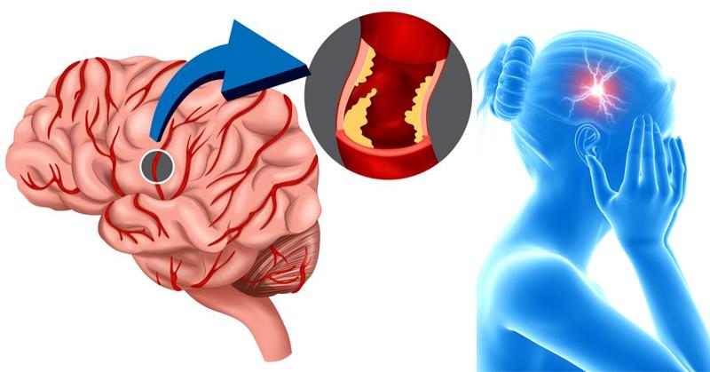 prevent stroke FI