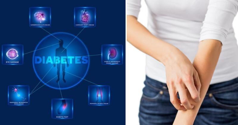 signs diabetes FI