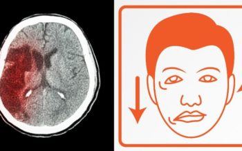 5 Early Warning Signs of a Stroke You Should Never Ignore!