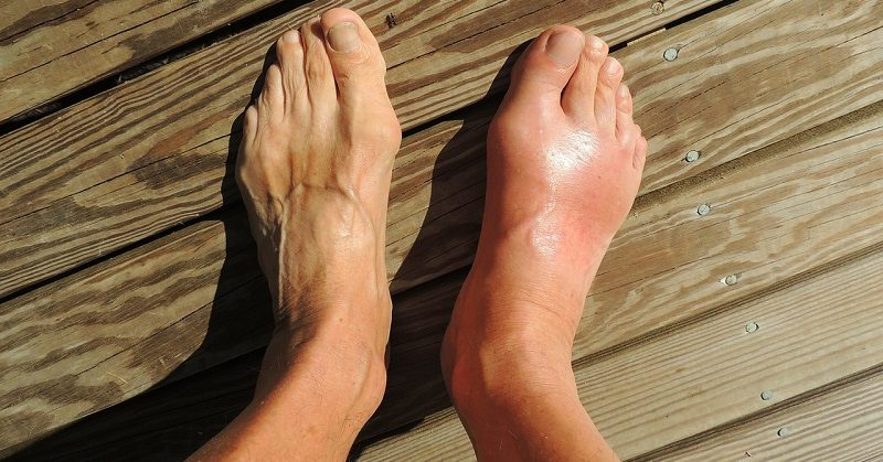 gout FI