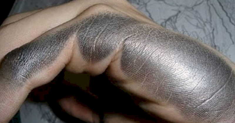 left handed FI