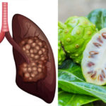 plant lung cancer FI