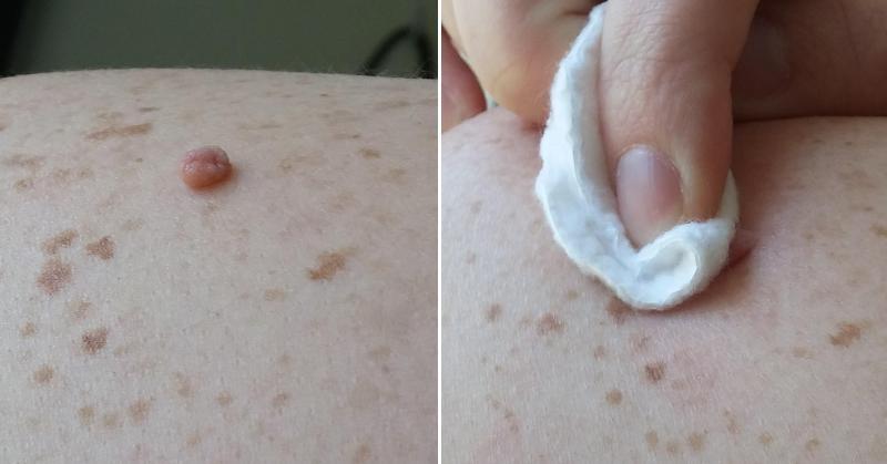 skin tag FI
