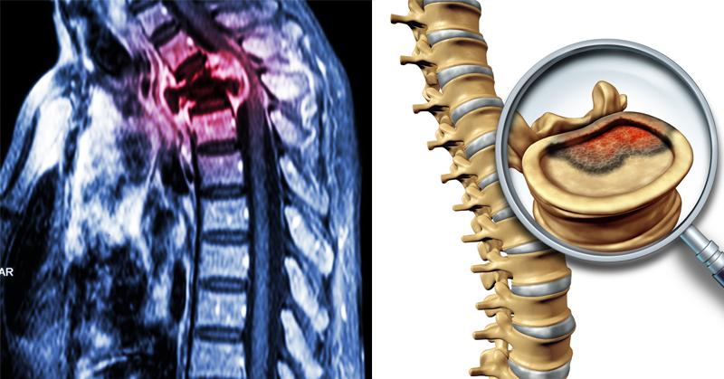 spinal cancer alkiline FI
