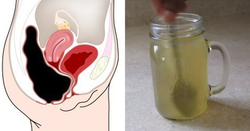 acv honey constipation FI