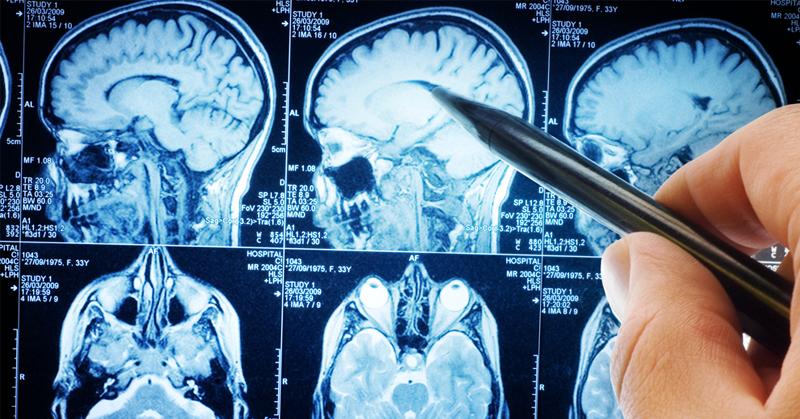 fasting brain FI
