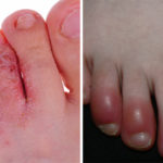 feet health FI