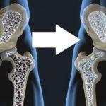 food osteoporosis FI