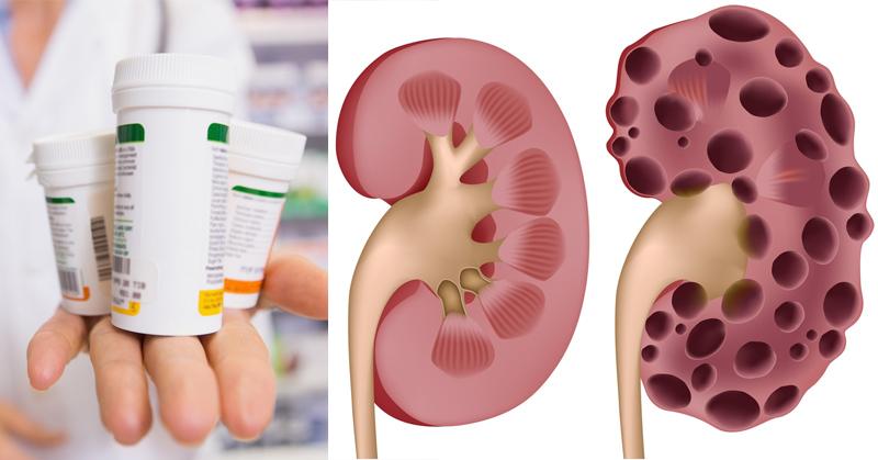 heartburn medication kidney disease FI
