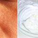 large pores FI