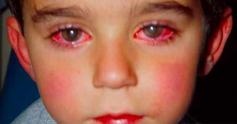 laser eyes FI02