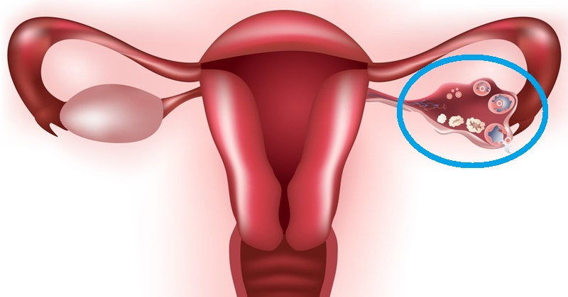 Image result for ovarian cyst