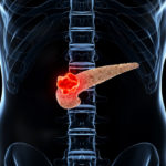 pancreatic cancer turmeric FI