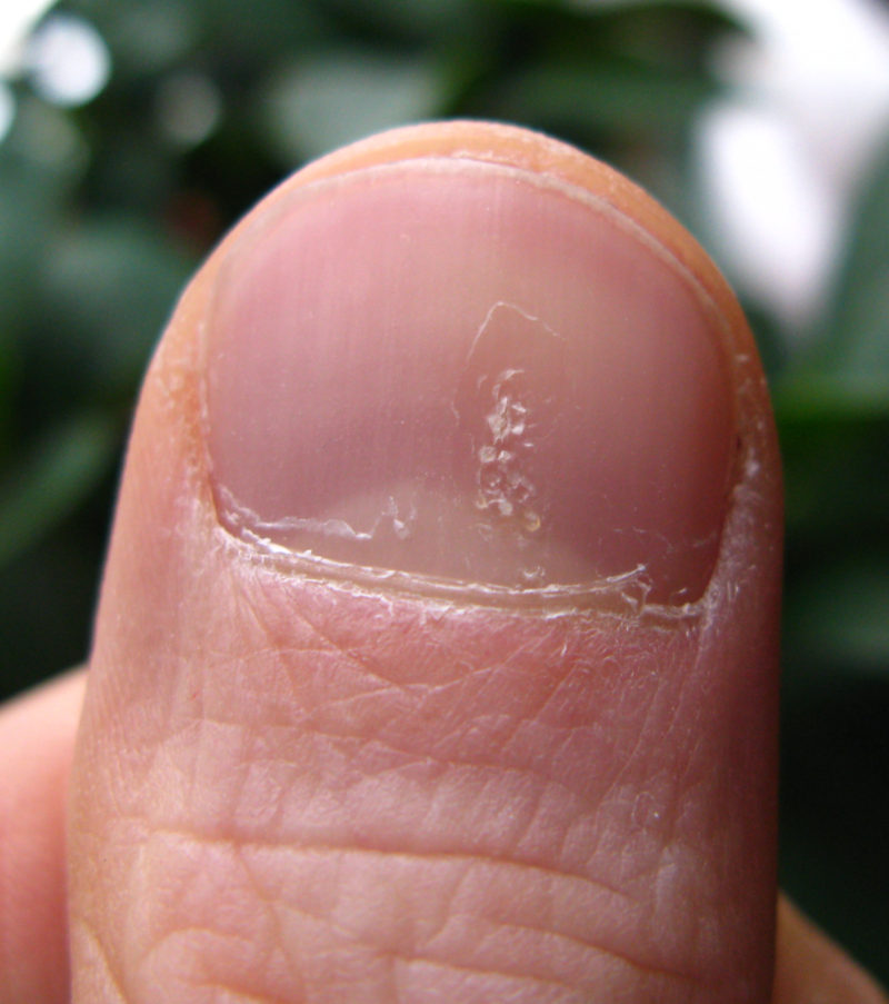 pitted thumb psoriasis