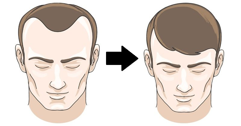 reverse balding FI