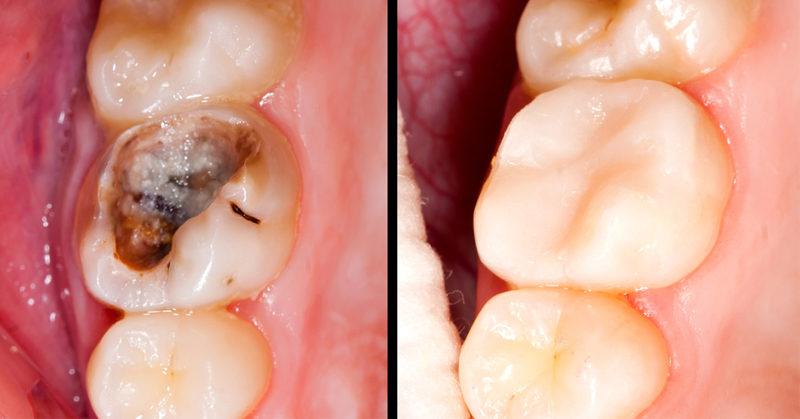 reverse cavities FI