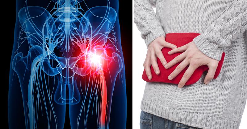 sciatica remedies FI